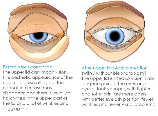 Ptosis surgery PLP | Clinica London