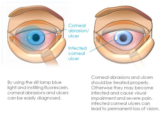 Corneal abrasion and ulcer