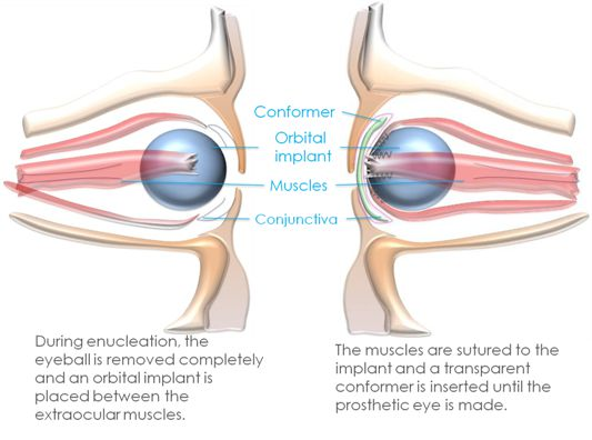s22enucleation