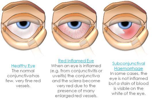 steroid eye drops pink eye