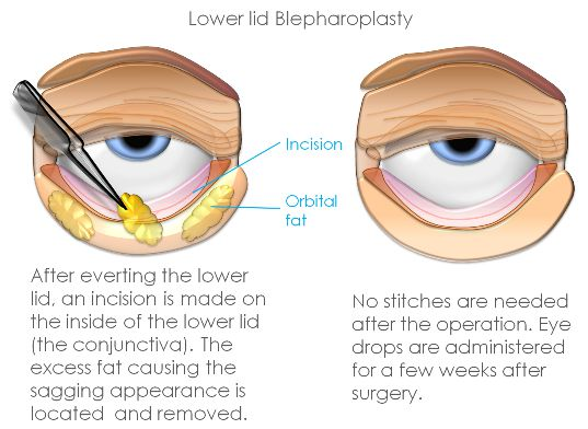 Blepharitis And Meibomitis Conditions Amp Treatments