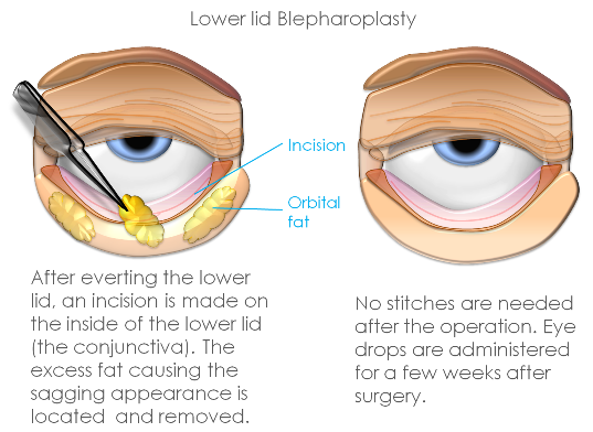 Blepharoplasty Harley Street Clinica London