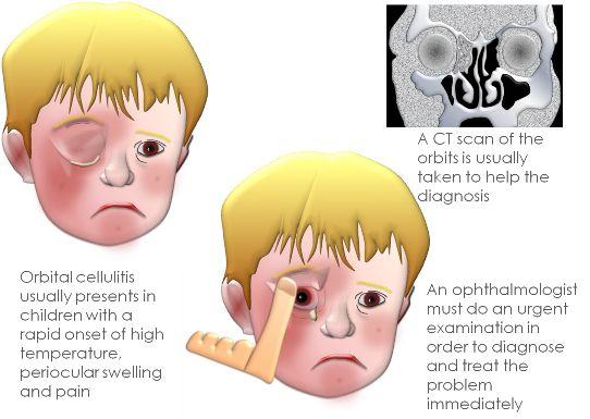 facial treatment cellulitis of