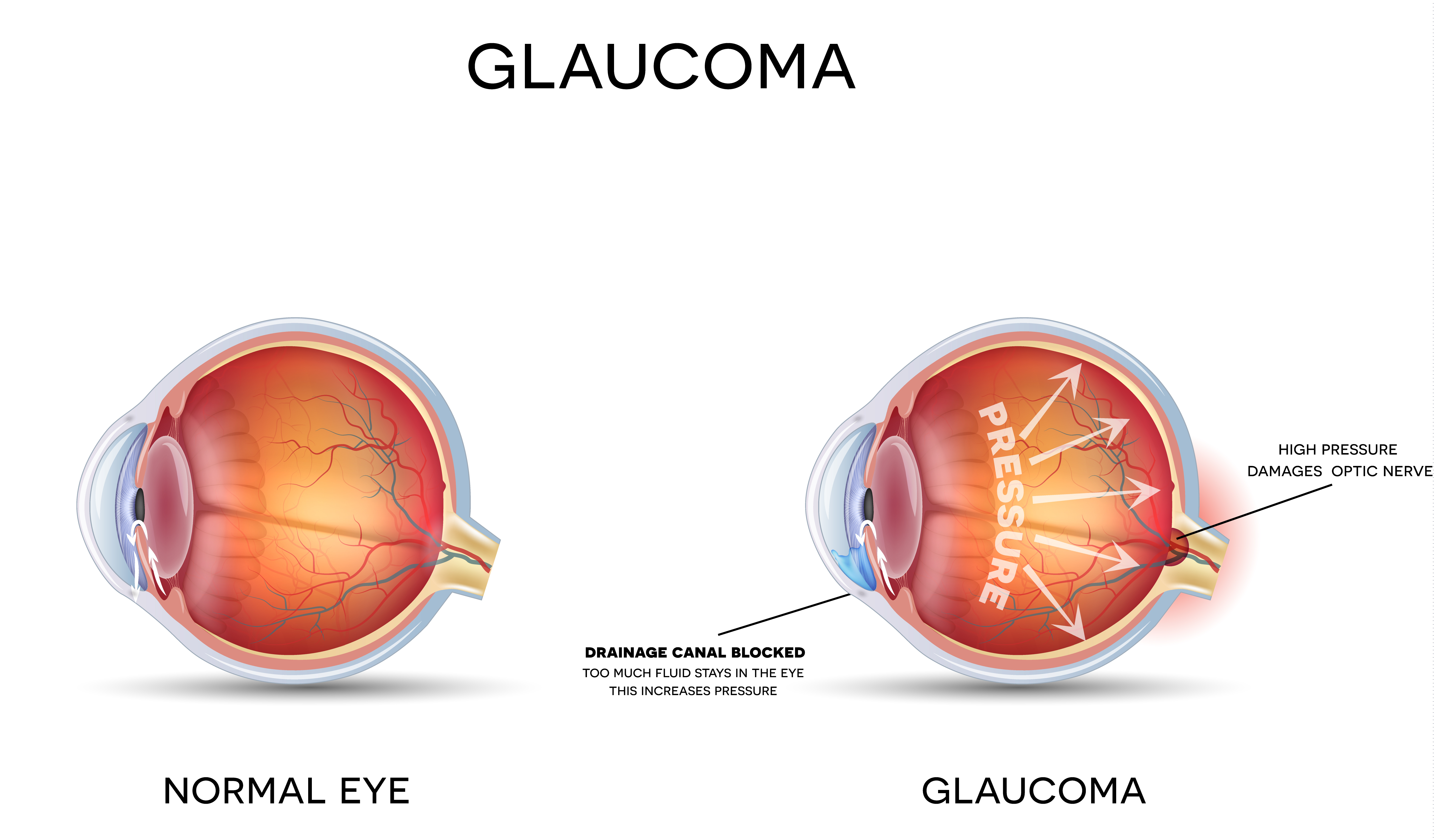 what-is-glaucoma