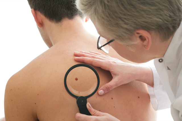 Costs of Mole checks and treatment of other skin lesions