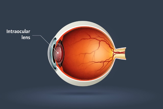 what is an intraocular lens