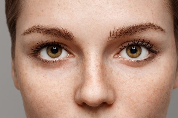 get droopy eyelid cure