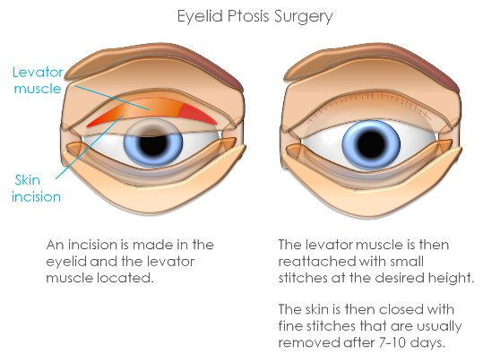 Ptosis treatment 1