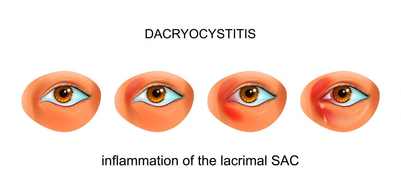 Acute Dacryocystitis 3