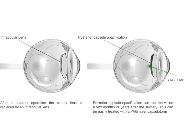 YAG laser posterior capsulotomy? 1