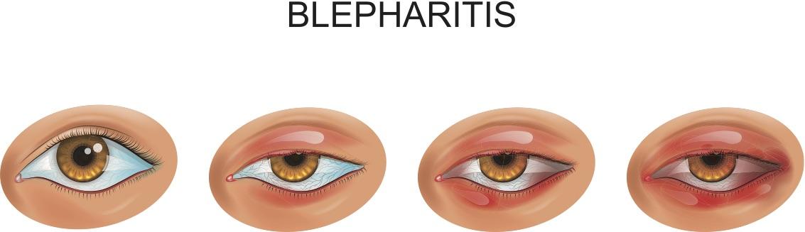 Blepharitis and Meibomitis 1