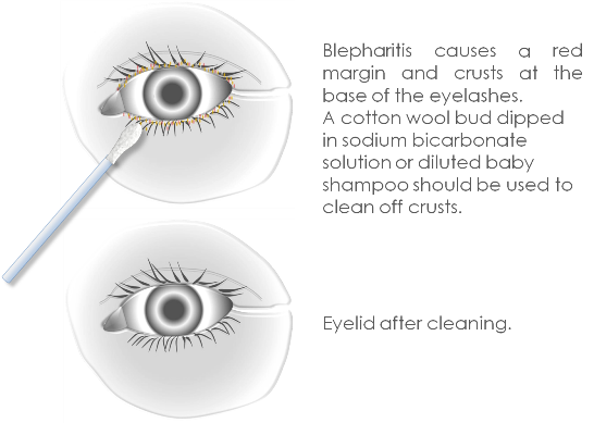 Blepharitis and Meibomitis Treatment 1