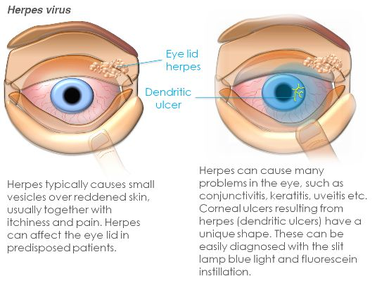 Corneal Abrasion and Ulcer 2