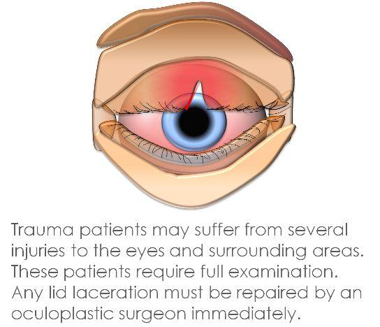 Eyelid Trauma Scarring